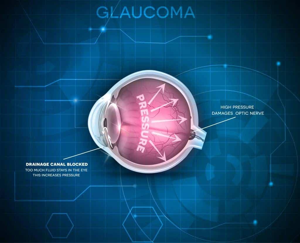 Gruener-Star-Glaukom