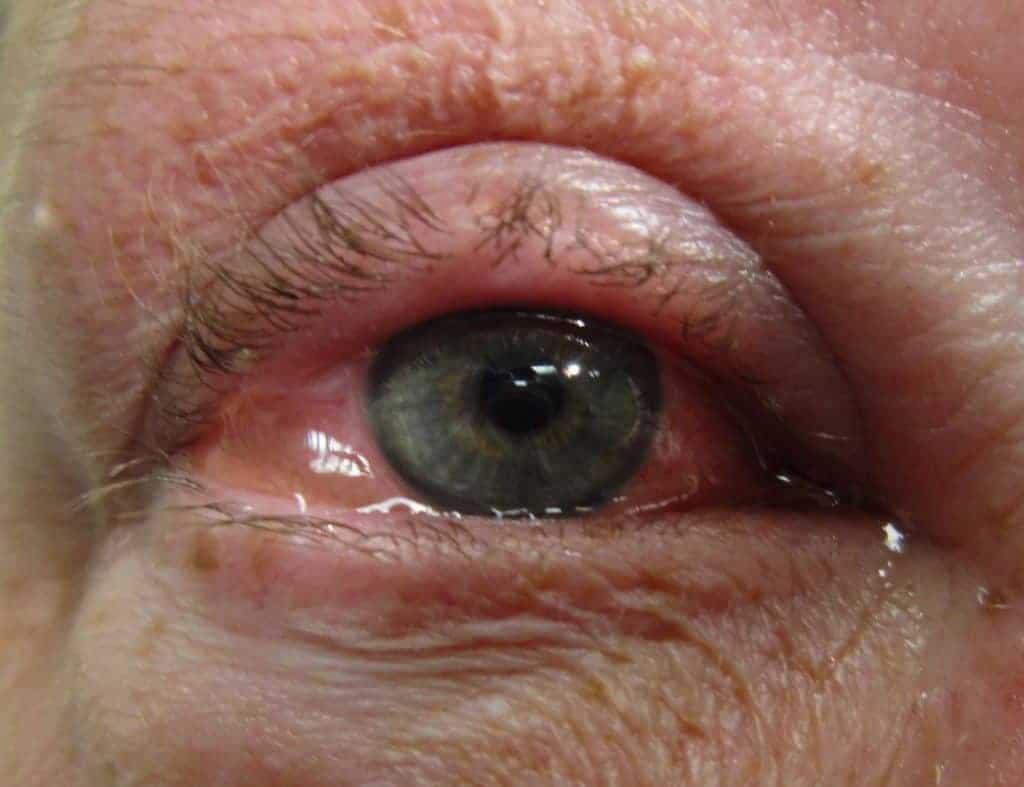 Allergische-Bindehautentzuendung