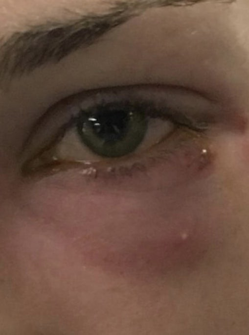 Herpes um das Auge
