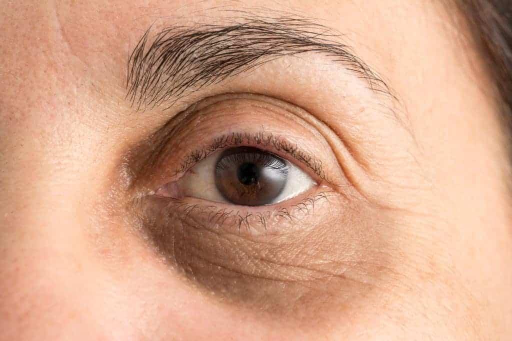 Augenringe Ursachen Und Behandlungen Lux Augenzentrum