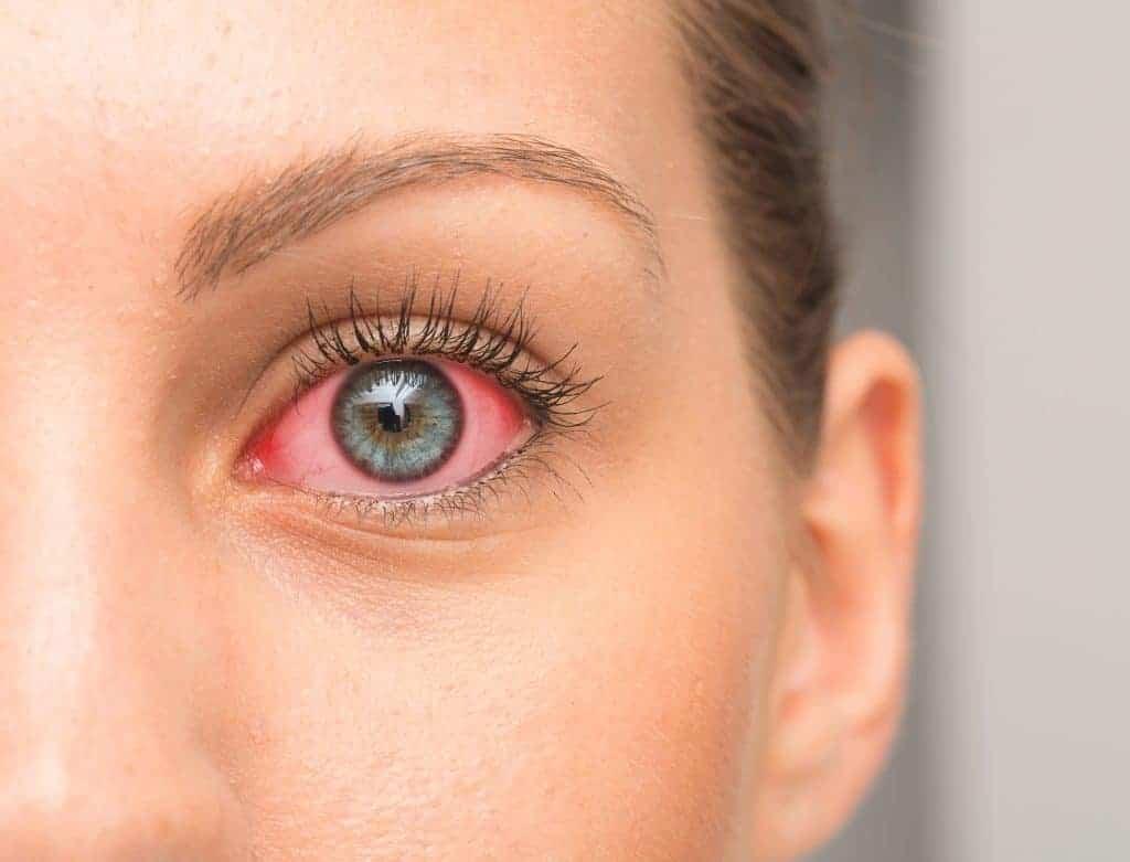 Augenentzuendung-mit-Viren