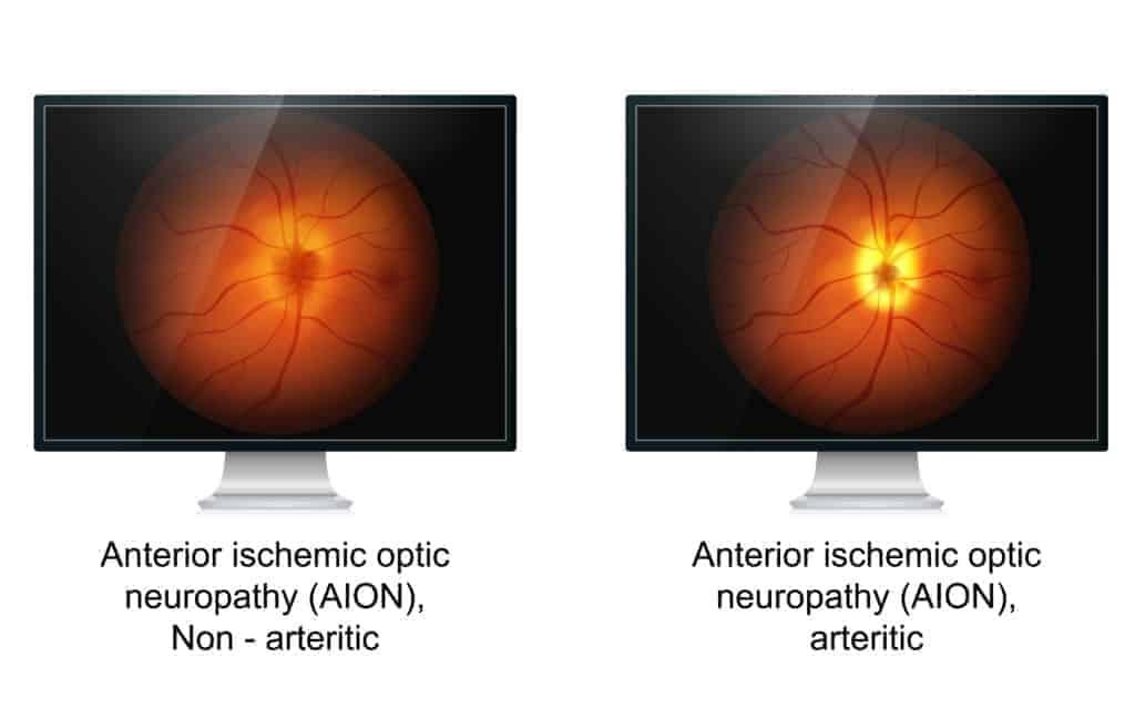Augeninfarkt-Sehnervinfarkt