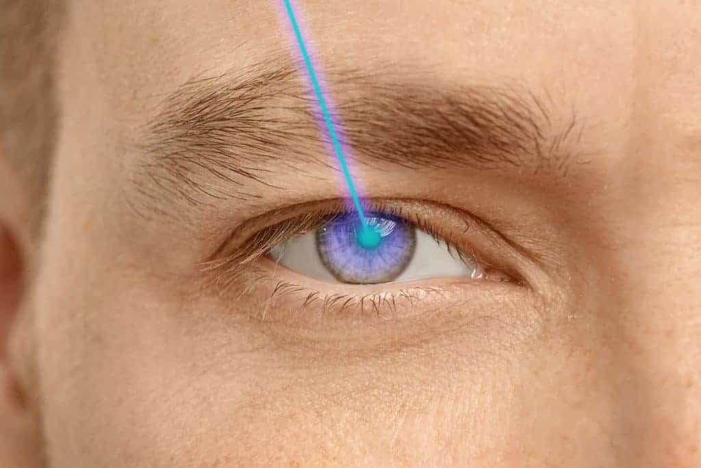 LASIK-Augenlasern