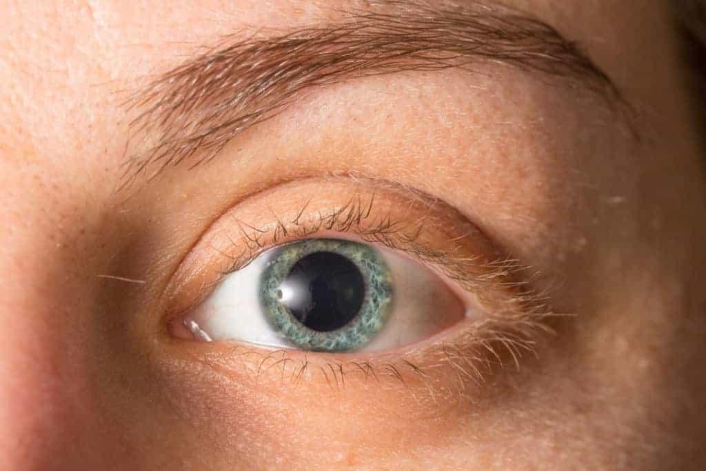 Pupillenstoerungen
